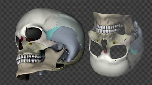 3d-printed-bone-implant-regrow-bone-2